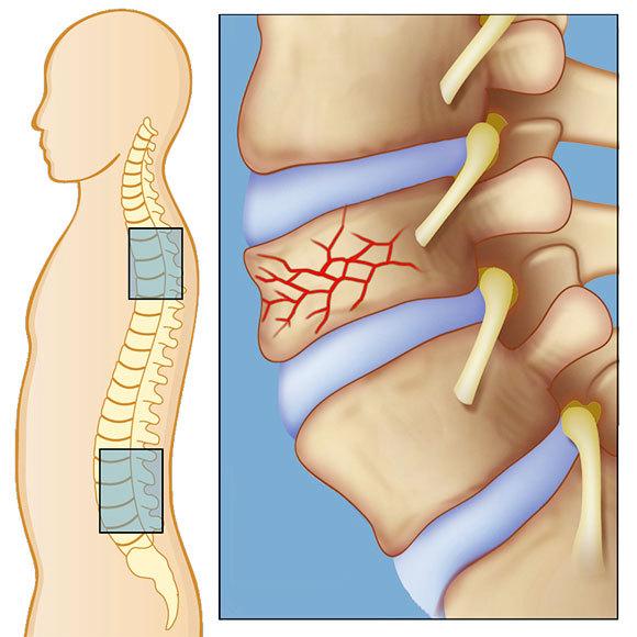 Компрессионный перелом позвоночника: что это такое, лечение и реабилитация после травмы