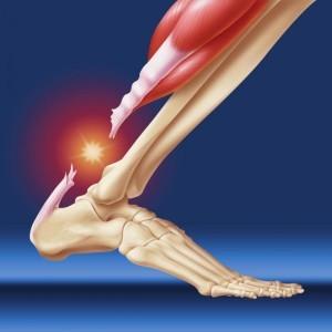 Операция на ахилловом сухожилии при разрыве и пластика по удлинению ахилла, реабилитация и восстановление ахиллесова сухожилия