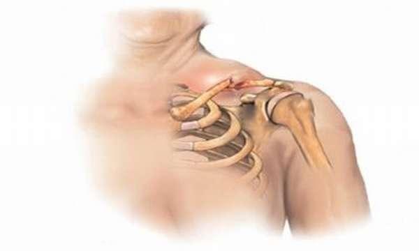 Перелом ключицы: симптомы и последствия, лечение и реабилитационный период
