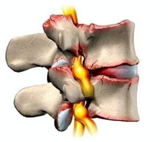 Боль в мышцах бедра — причины и лечение, что делать при сильной боли в левом или правом бедре отдающей в ногу