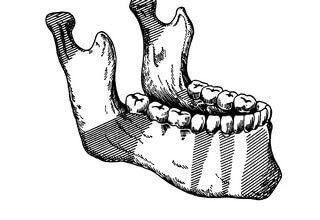 Перелом нижней челюсти: лечение и шинирование, симптомы травмы и последствия