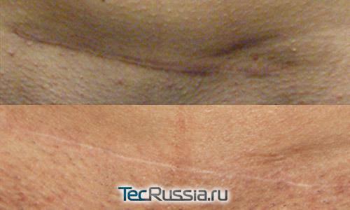 Почему остаются шрамы от прививки на плече и от какой, образуется ли рубец после микродермала, кесарева сечения и микроблейдинга