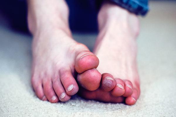 Обморожение ног: первая помощь и лечение стоп, симптомы степеней поражения