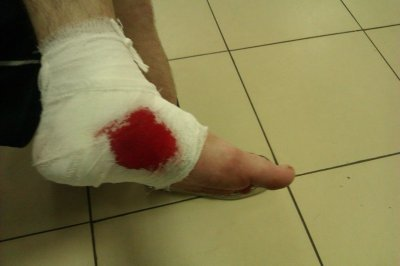 Первая помощь при простой неглубокой ране и глубоком порезе, как и чем лечить порез, что делать при кровотечениях