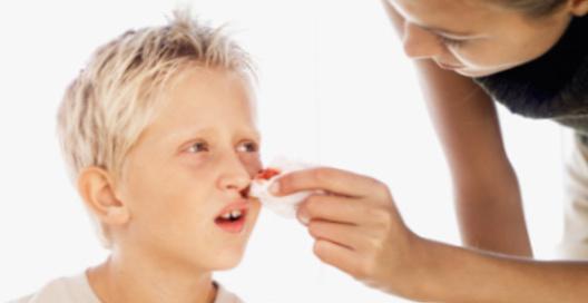 Первая помощь при кровотечении из носа: как остановить кровь у ребенка и взрослого, алгоритм действий