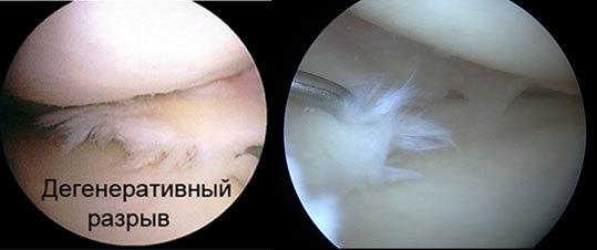 Разрыв переднего рога латерального мениска — лечение и симптомы, повреждения заднего рога мениска