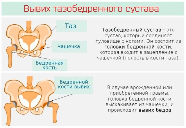 Вывих тазобедренного сустава у взрослых и детей: симптомы, первая помощь и лечение