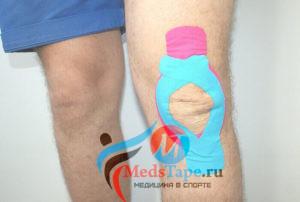 Растяжение крестообразной связки коленного сустава — симптомы и лечение повреждения, тейпирование колена при травме