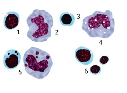 Свинцовая интоксикация: симптомы и признаки отравления свинцом, лечение хронической формы интоксикации