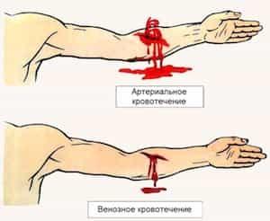 Виды кровотечений и их характеристика: классификация типов кровоизлияний, признаки и оказание первой помощи