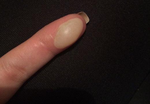 Что делать при ожоге пальца в домашних условиях и как снять боль, первая помощь ребенку если он обжег палец горячим утюгом