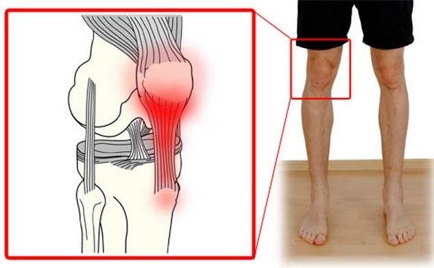 Воспаление связок коленного сустава — лечение и симптомы, причины тендинита подколенного сухожилия и чем лечить колено