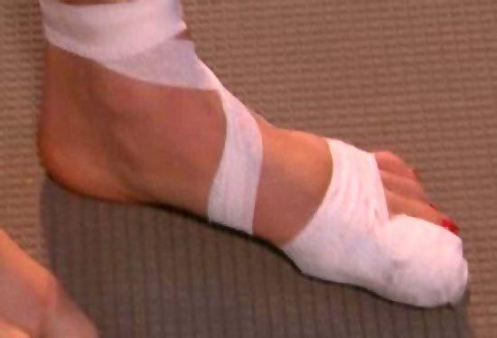 Перелом большого пальца ноги: симптомы и лечение, реабилитация и последствия
