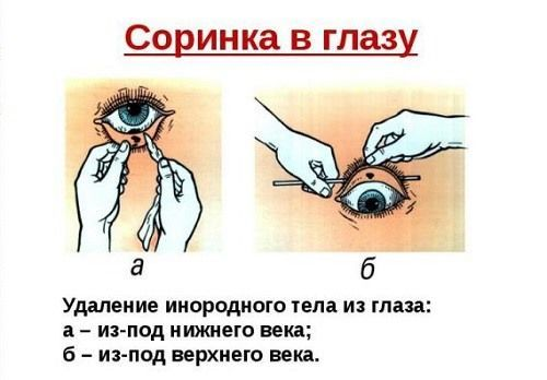 Как из глаза вытащить соринку и достать окалину, что делать если инородное тело попало в глаз и не выходит, удаление опилок