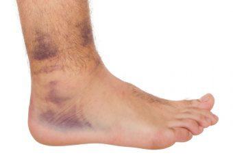 Воспаление связок стопы — лечение и симптомы и как лечить воспаление сухожилий и нерва голеностопного сустава (голеностопа)