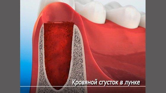Вырвали зуб — чем полоскать для быстрого заживления десны, полоскание рта после удаления зуба мудрости мирамистином