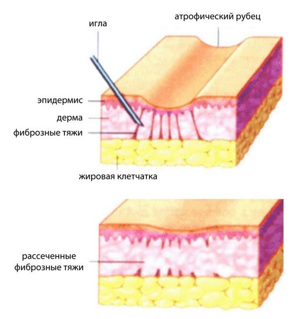 Удаление рубцов после удаления родинок лазером, как убрать келоидный (коллоидный), гипертрофический и атрофический шрам