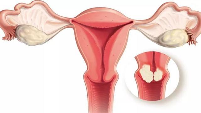 Кровотечение после месячных — причины и как остановить, сильные кровянистые выделения со сгустками при менструации