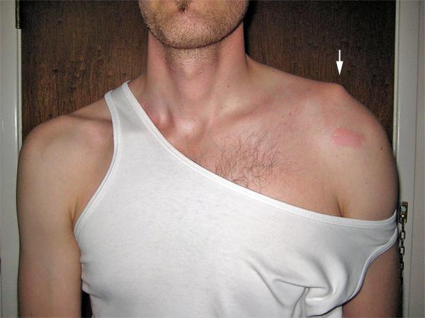 Привычный вывих плеча: лечение без операции и хирургия плечевого сустава, реабилитация