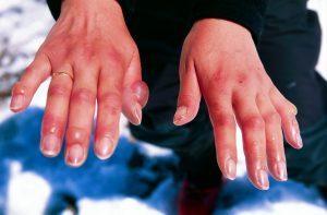 Периоды обморожения: дореактивный и реактивный, степени отморожения