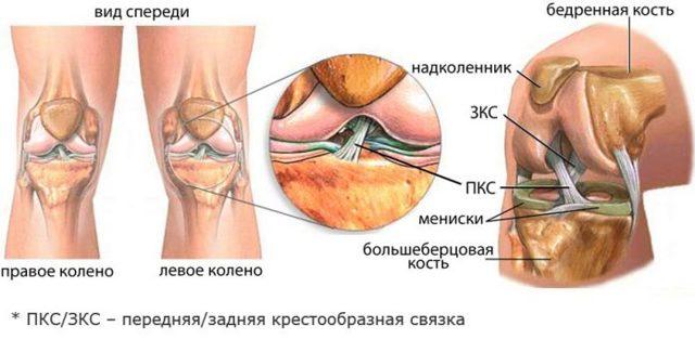 Дегенеративные изменения передней крестообразной связки коленного сустава и частичные повреждения крестов колена