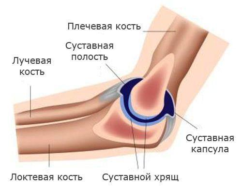 Перелом локтевого сустава со смещением и без: лечение и разработка руки