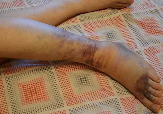 Растяжение связок голеностопа — симптомы и лечение, фото травмы голеностопного сустава, признаки повреждения стопы