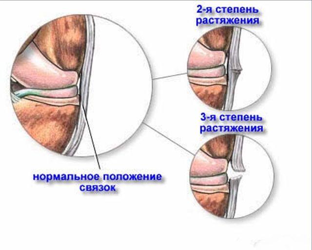 Растяжение связок локтевого сустава — лечение, симптомы и причины у взрослого и ребенка