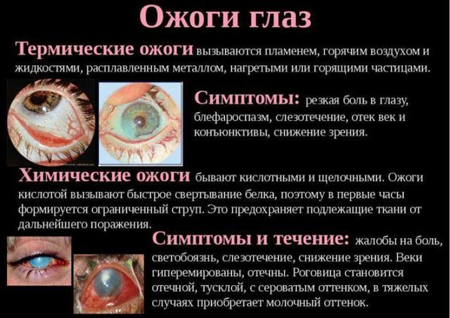 Ожог роговицы глаза — лечение (капли и мази), что делать если обжег сетчатку сваркой и чем лечить химический ожог слизистой