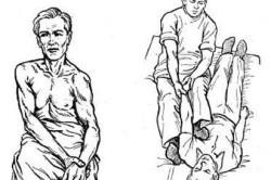 Вправление вывиха: по Джанелидзе, Кохеру, Гиппократу, Моту и другие методы лечения