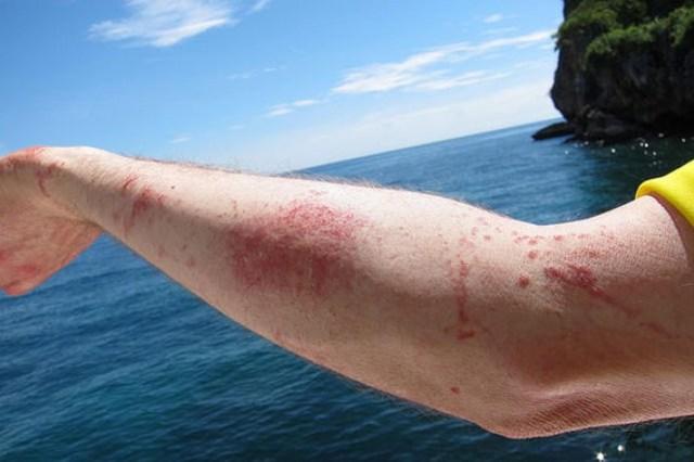 Ожог от медузы (фото) — что делать и как лечить, первая помощь при укусе, лечение и последствия ожога медузы в черном море
