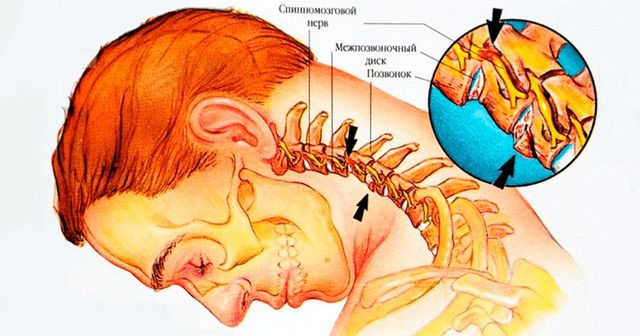 Дергается икроножная мышца — причины подергивания, лечение гипертонуса и что делать если защемило мышцу у взрослого или ребенка