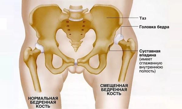 Артрит плечевого сустава лечение уколы