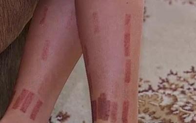 Ожоги после лазерной эпиляции — что делать и как лечить, симптомы ожога от воска и крема для депиляции на лице