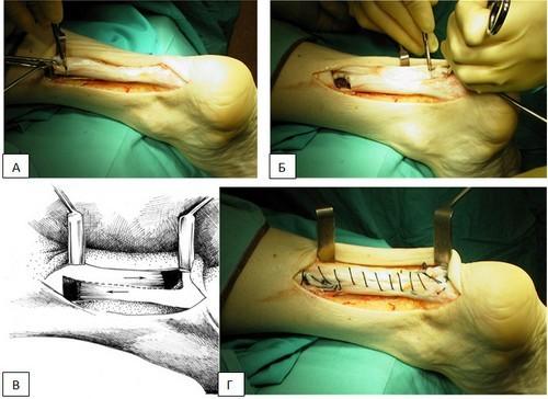 Растяжение ахиллова сухожилия — лечение и симптомы, что делать если потянул (растянул) ахилл и как лечить мазями