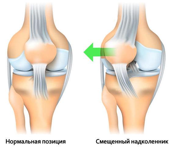 Как восстановить связки коленного сустава — упражнения для восстановления после травмы колена, ЛФК при реабилитации