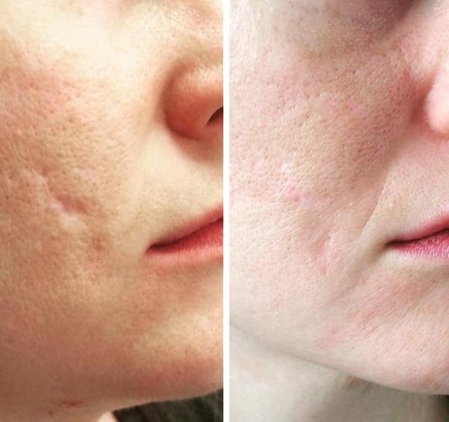 Средство от шрамов и рубцов на лице и теле, лучшие народные средства и препараты для рассасывания рубцов после прыщей и операции