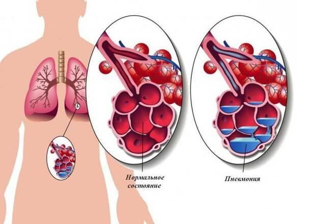 Инфекционно-токсический шок — клиника и лечение, шок при пневмонии и оказание неотложной помощи детям