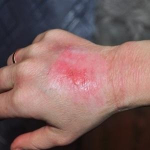 Мазь Левомеколь при ожогах — инструкция по применению, можно ли мазать ожог кипятком у ребенка и как применять