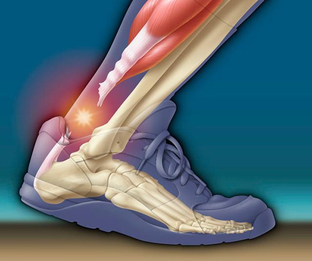 Реабилитация после разрыва ахиллова сухожилия и сроки восстановления, ЛФК упражнения и массаж после травмы ахилла