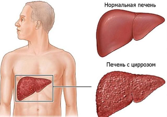 Спайс — последствия и признаки употребления, отравление и передозировка курительной смесью