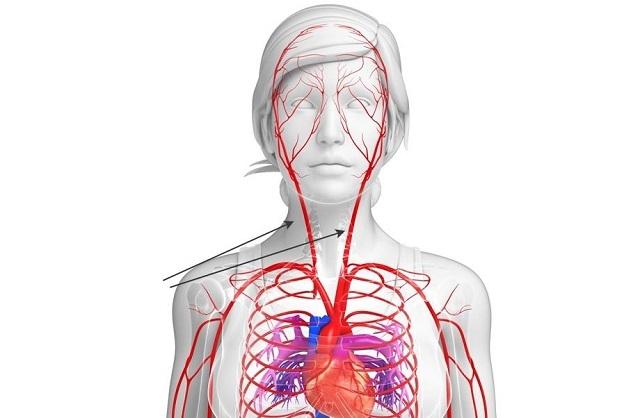 Признаки артериального кровотечения и первая помощь: остановка кровоизлияния, алгоритм и правила наложения жгута
