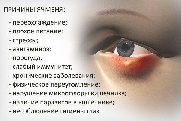 Почему на глазу появляется ячмень и что делать если он начинается, сколько ячмень держится и как лечить когда он прорвался
