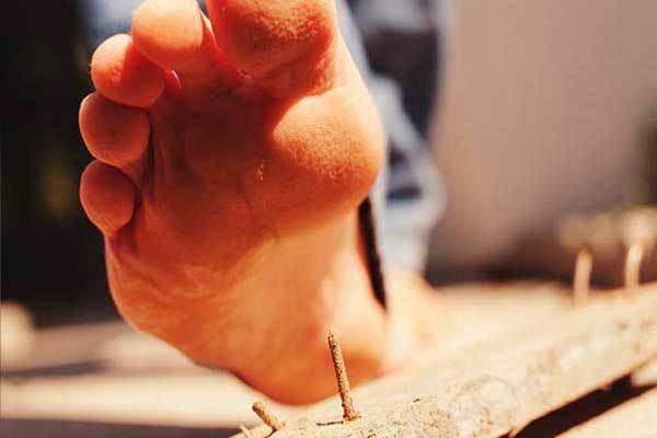 Наступил на гвоздь — что делать если проколол ногу ржавым гвоздем, чем лечить когда распухла нога (народные средства)