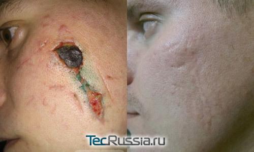 Контрактубекс — аналогичные препараты от шрамов и рубцов и отзывы при лечении мазью (кремом) шрамов после прыщей и операции