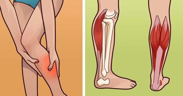 Спазм икроножной мышцы одной ноги — причины и что делать, резкая боль ночью во сне в мышцах голени
