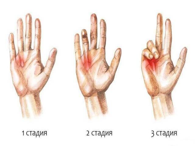 Виды рубцов и шрамов и их лечение мазями, удаление атрофических, нормотрофических и других рубцов на лице и теле