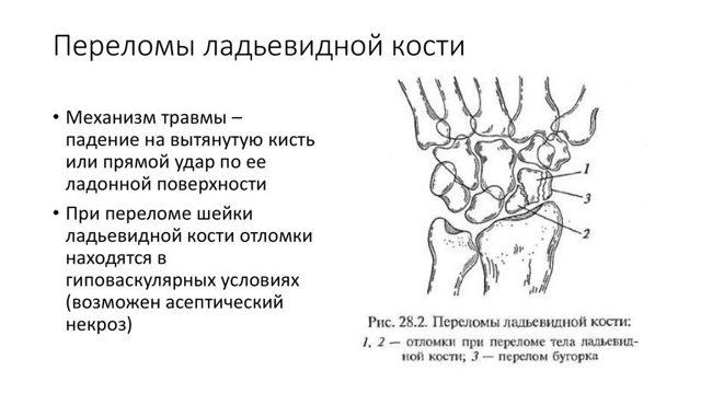 Перелом ладьевидной кости кисти: лечение и сроки восстановления руки