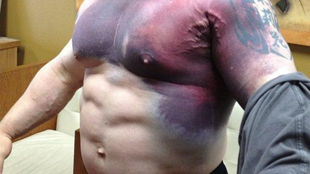 Растяжение грудной мышцы — симптомы и лечение, разрыв, надрыв и отрыв мягких тканей грудной клетки