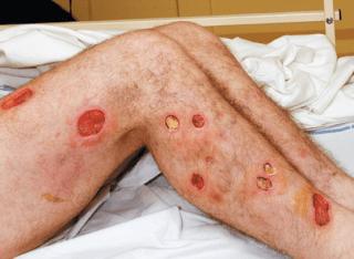Клиника ботулизма — микробиология и патогенез, этиология и эпидемиология, лечение заболевания